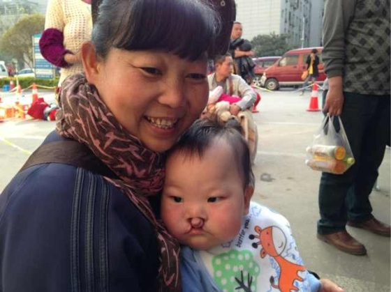 11 month old orphan, Jin Hao 金浩 before surgery